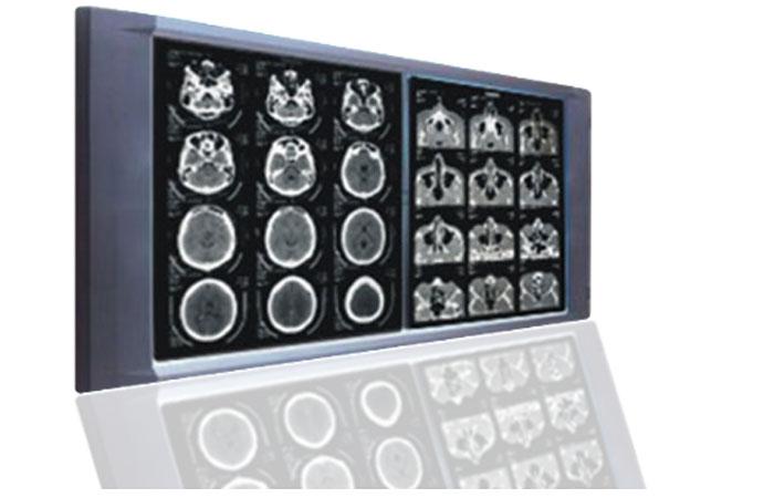 avanttec-X-ray